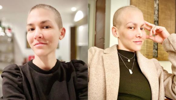 Anahí de Cárdenas se reinventa tras terminar con su quimioterapia. (Foto: @anahidec)