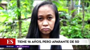 El extraño caso de una mujer de 16 años que luce como una de 50