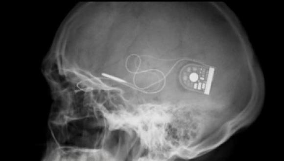 UNA LUZ. Retina electrónica abre una esperanza a los que no ven. (BBC Mundo)