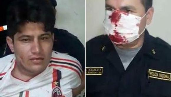 Agente policial de Comas fue agredido brutalmente tras intervenir a sujeto que imcumplió toque de queda.