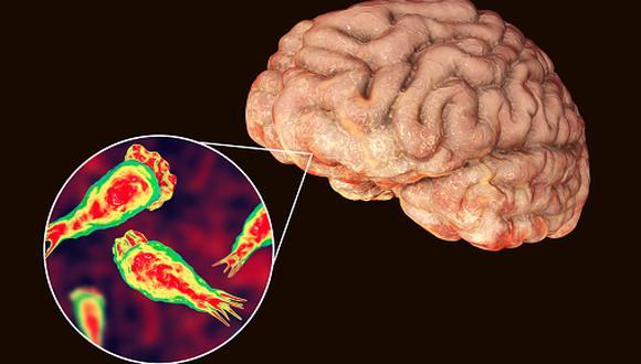 Ameba 'comecerebros' o meningoencefalitis. (Getty Images)