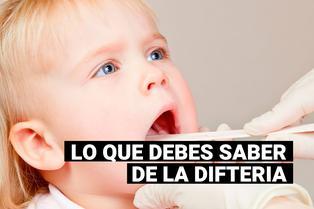 ¿Qué es la difteria?: todo lo que debes saber
