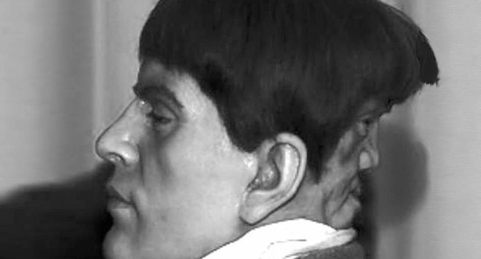 Diprosopia: La verdadera historia del hombre con dos rostros. (Difusión)