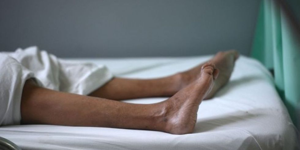 La mayoría de las personas se recuperan del Síndrome de Guillain-Barré. (Foto: AFP)