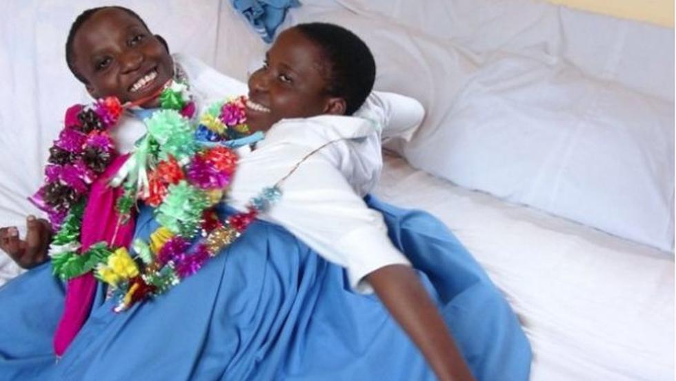 María y Consolata Mwakikuti, las mellizas siamesas de Tanzania, fallecieron ayer tras padecer complicaciones respiratorias. (Agencias)